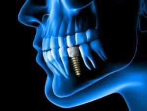 Dental Implants Little Falls, NJ